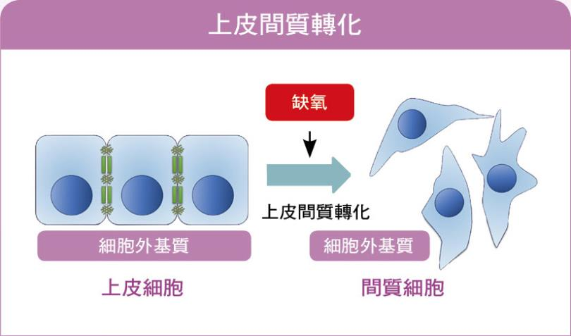 上皮间质转化:当癌细胞在缺氧的环境下,细胞会进行一系列的上皮间质转化,细胞型态因此由上皮细胞转化为具有移动与侵入能力的间质细胞。