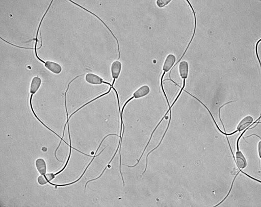 公牛的精子。图/Animal & Daily Science