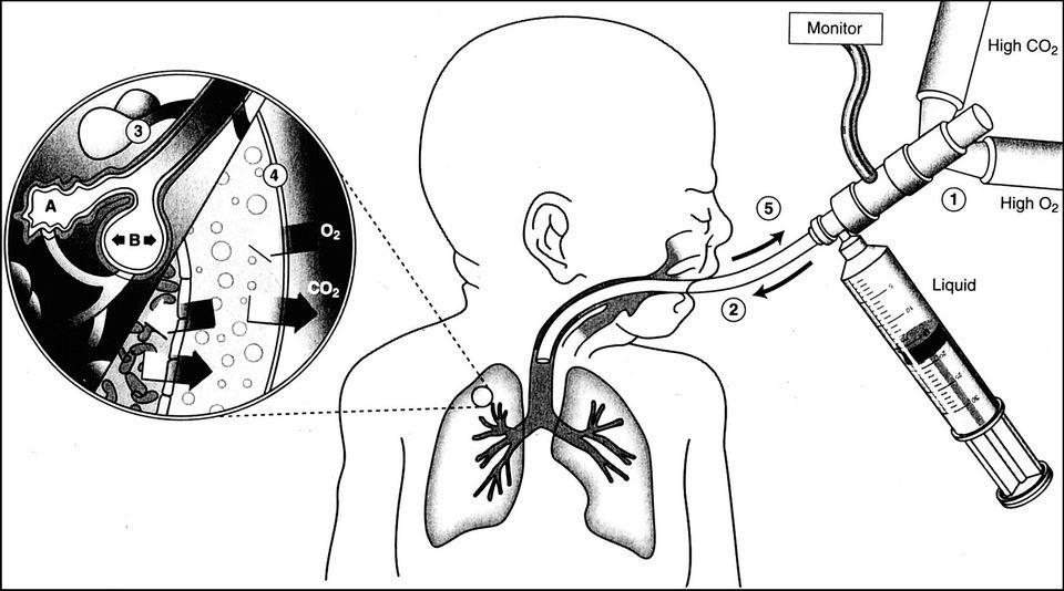 PLV技术:让人类也能在液体中呼吸插图4
